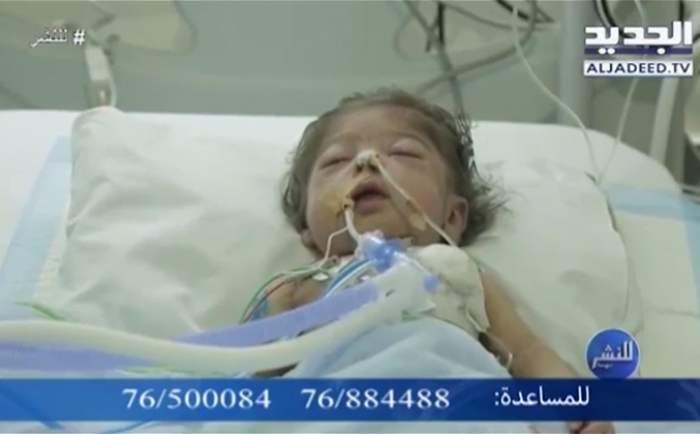 Banin Charity call to help Ahmad Osman ( 135000$)